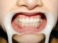 假牙也疯狂 咬出来的暴力
