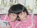 伊朗连体姐妹 分离手术背后的故事(一)