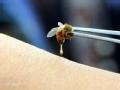 疯狂的怪事 探秘活蜂蛰刺疗法