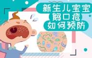 新生兒鵝口瘡如何預防