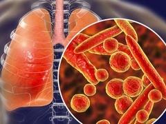 关于新冠肺炎的一切